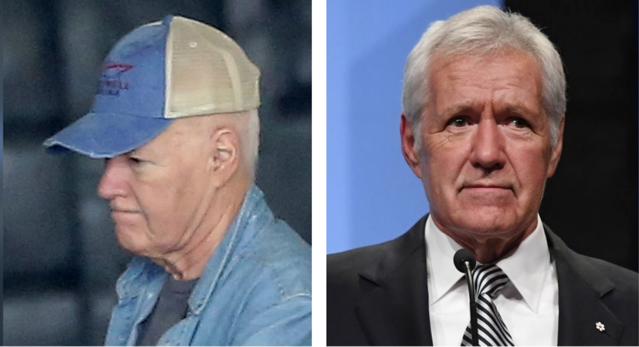 the left picture is a picture of trebek with a beige and blue baseball cap and jean jacket. the right photo is a picture of him in a suit wearing a wig after losing his hair due to chemotherapy