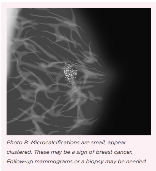 What Do You Mean, I Have 'Calcifications' in My Breast